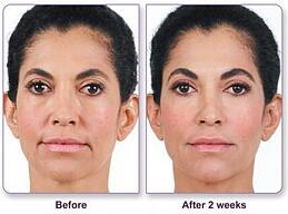 2 syringes of filler were used for nasolabial folds and marionette lines