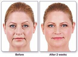 4 syringes of filler were used for the nasolabial folds and marionette lines